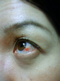 Bloodshot eye